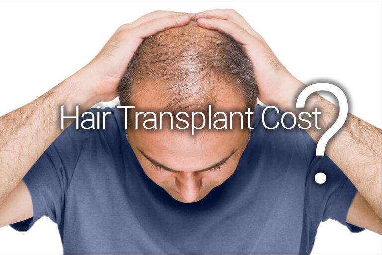 hair-transplant-cost